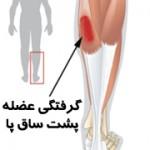 کشیدگی، رگ به رگ شدن و اسپاسم عضلات