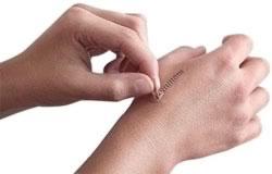 پاک کردن جای زخم از روی پوست/جای زخم چیست/سلامت